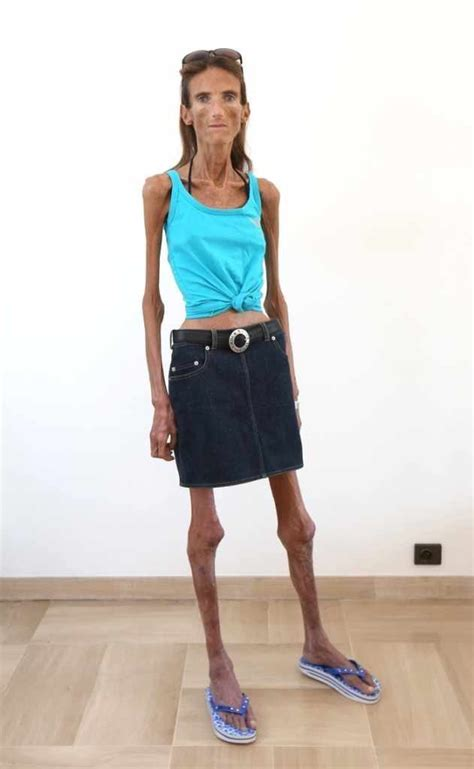 Who is the Skinniest Person in the World? It's a real shock