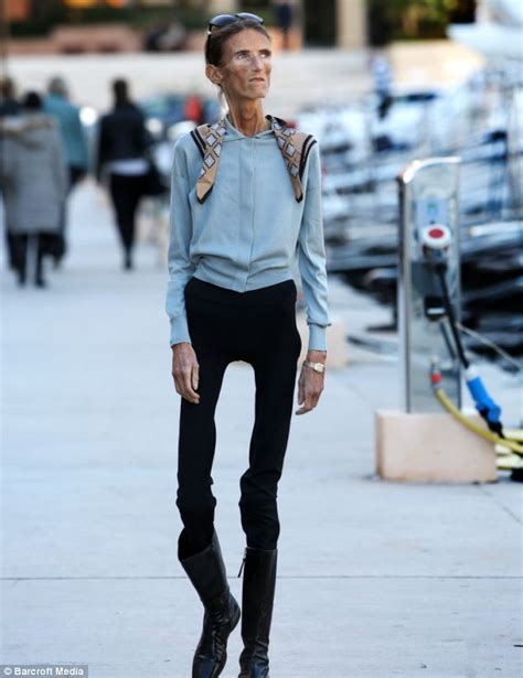 Frightening words of 4st anorexic Valeria Levitin who gets