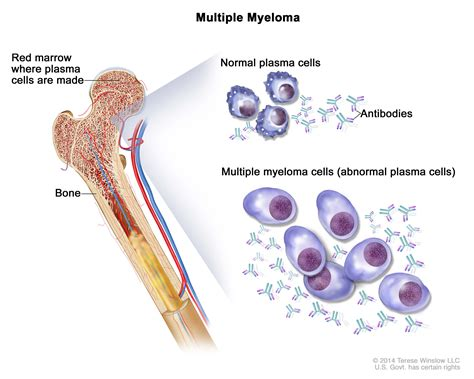 Plasma Cell Neoplasms (Including Multiple Myeloma)—Patient